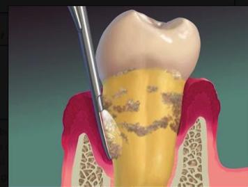 traiter la parodontite